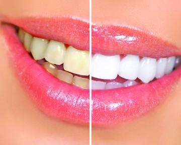 Tanden bleken voor & na
